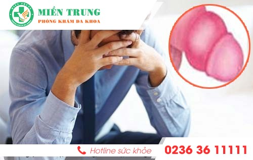 Các bệnh thường gặp ở bao quy đầu nam giới cần biết