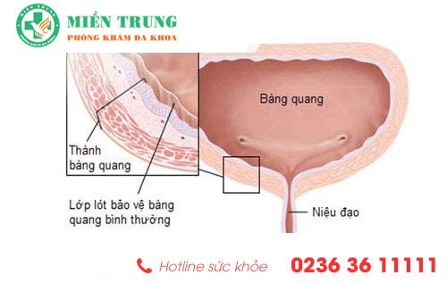 Phương pháp hỗ trợ điều trị viêm bàng quang